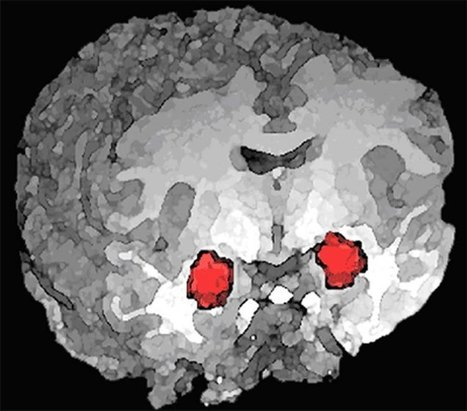 Testosterone Influences Emotional Regulation in Psychopathic Brain | Social Neuroscience Advances | Scoop.it