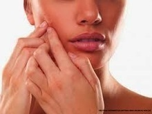 Treating Dark Spots Caused by Acne | Health Tips | Health Tips | Scoop.it
