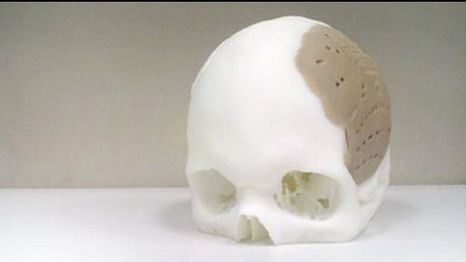 Man has 75% of skull replaced by 3-D printed replica | 3D printing | Scoop.it