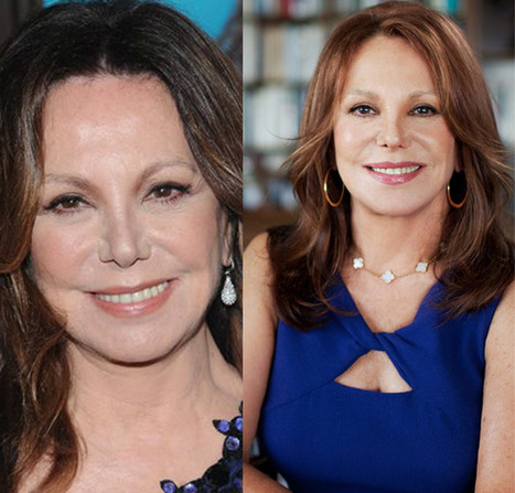 Did Marlo Thomas had plastic surgery? | Celebrity Plastic Surgery | Scoop.it