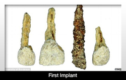 First Implant May Have Been Discovered | Dental Implants | Scoop.it