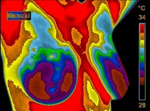Thermography is a safe alternative to Mammography | Cancer mensonges & propagande | Scoop.it