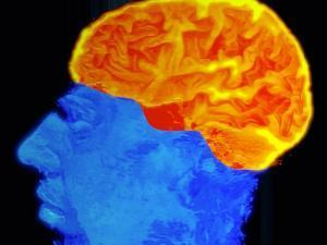 Enhanced imaging of brain damage boosts treatment   Southern Hemisphere   Scoop.it