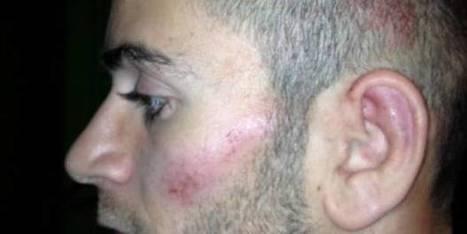 Il a bu, brûle un feu, fuit et… se plaint de la police ! | frans ikram | Scoop.it