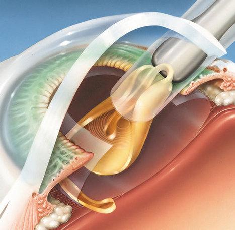 El implante de lentes intraoculares para la corrección de la visión aumentó en España un 34% en 2013 | òptica | Scoop.it