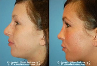 Plastic surgery facial oregon
