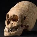 Des archéologues découvrent un crâne déformé… en France - Gizmodo | Saintes Tourisme | Scoop.it
