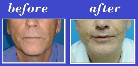 Lip Lift And Fat Grafting | Bangkok Aesthetic Surgery Center | Bangkok Aesthetic Surgery | Scoop.it