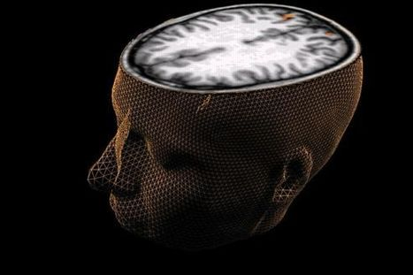 L'étonnante plasticité du cerveau humain | Seniors | Scoop.it