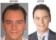 Direct Hair Implantation | Hair Treatments | Scoop.it
