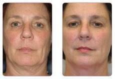 Treatment of Sun Damage   facialrejuvenation   Scoop.it