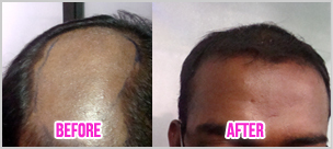 Hair loss treatment Bangalore | Best Hair Transplant Surgeon in Bangalore | Scoop.it