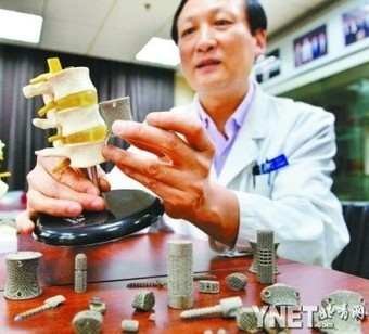 3D Printing SpinalImplants - Fabbaloo Blog - Fabbaloo - Daily News on 3D Printing | Top CAD Experts updates | Scoop.it