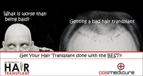Cosmedicure | Hair Transplant Clinic | Cosmetic Denstistry, Hair transplant in mumbai,Best hair transplant in Mumbai,Cheapest hair transplant in Mumbai. | Cosmedicure | Hair Transplant Clinic in Mumbai | Scoop.it