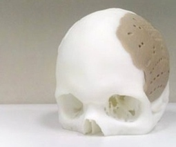 3D-printed implant used to replace 75 percent of man's skull | Embodied Zeitgeist | Scoop.it