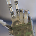 Prosthetic Hand Wires In Patient's Nerves For Sensations Of Touch | Longevity science | Scoop.it
