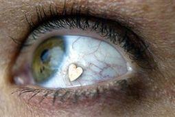 Una peligrosa moda: implante de joyas en los ojos | Salud Visual 2.0 | Scoop.it