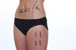 Best Liposuction in New York City   Latest Information   Scoop.it