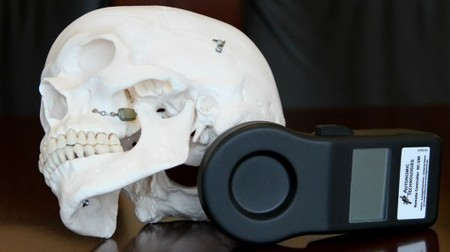 First US patient receives cluster headache-stopping facial implant | The future of medicine and health | Scoop.it