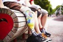 Custoprothetik : pour changer la vision du handicap | AlloProd | Enfance et handicap | Scoop.it