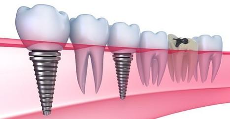 Trồng răng bằng phương pháp implant là gì? | Dịch vụ điện lạnh | Scoop.it