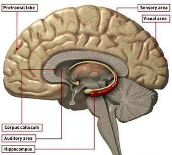 Tipos de amnesia (I) | El Poder de la Mente | El poder de la mente | Scoop.it