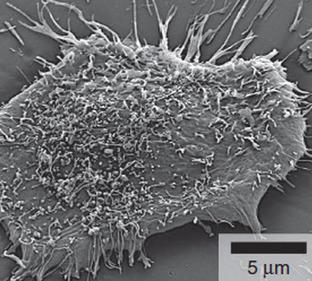 Nano drug crosses blood-brain tumor barrier, targets brain tumors | KurzweilAI | Longevity science | Scoop.it