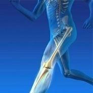 Premier Orthopedic Solutions Inc. | Carl Bax | Scoop.it