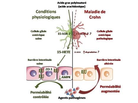 Maladie de Crohn : un acide gras est responsable - Sciences et Avenir | maladie de crohn | Scoop.it