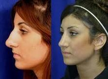 An Insight On Open Vs. Closed Rhinoplasty | Modern Medicine And YouModern Medicine And You | surgery performed to correct the proportion of the nose | Scoop.it