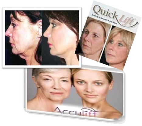 Mini Facelift, Quicklift, Weekend Facelift Thailand Cost - Urban Beauty Thailand | Laser Facelift Skin tightening Bangkok, Ulthera, Coolsculpting by Zeltig, Thread lift, Thermage, Mini facelift Phuket Thailand | Scoop.it