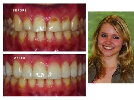 Dental Implants Sterling VA   Ridgetop Dental   Scoop.it