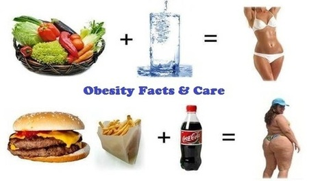 More About Obesity Surgery Procedure Cost and Benefits in India | Weight Loss Surgery | Scoop.it