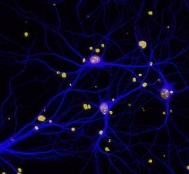 DNA Repair Protein BRCA1 Implicated in Cognitive Function and Dementia | Amazing Science | Scoop.it