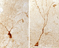 Old Blood Impairs Young Brains  - Technology Review   BlablaDoctor   Scoop.it
