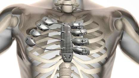 Patient receives 3D-printed titanium sternum and rib cage | Pectus Carinatum - Torse en carène - une méthode douce | Scoop.it