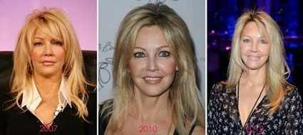 Heather Locklear Plastic Surgery Before & After Photos | Celebrity Plastic Surgery | Scoop.it