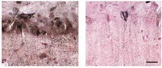 New Type of Toxic Tau? Acetylated Form Correlates With Memory Defects   ALZFORUM   Neurological Disorders   Scoop.it