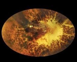 La prothèse rétinienne Argus II permet à des personnes aveugles de reconnaître des lettres et lire des mots - Isabelle Bikart | Optique lunetterie | Scoop.it