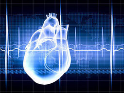 Comparing MI Death Rates by Country May Improve Care | Cardiology | Scoop.it
