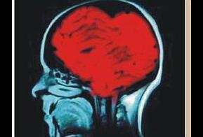 ¿Es el corazón más que un órgano? Sentimientos transplantados - Paperblog | De recuerdos y más que hay en la memoria | Scoop.it