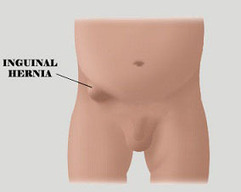 Inguinal Hernia Surgery:- Risks & Complications | Infectious and Chronic Disease Treatment | Scoop.it