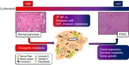 Cancers | Free Full-Text | Hypoxia Induced Tumor Metabolic Switch Contributes to Pancreatic Cancer Aggressiveness | Pancreatic cancer | Scoop.it