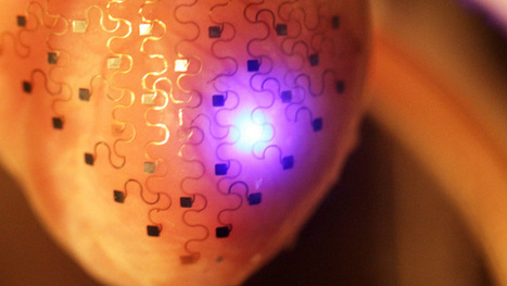 Next Generation: Sensor-Laden Sheath to Monitor the Heart | IT Support and Hardware for Clinics | Scoop.it