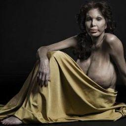 À quoi ressemble le corps après plusieurs opérations de chirurgie plastique? Le photographe Phillip Toledano nous le montre. | Actualités Photographie | Scoop.it
