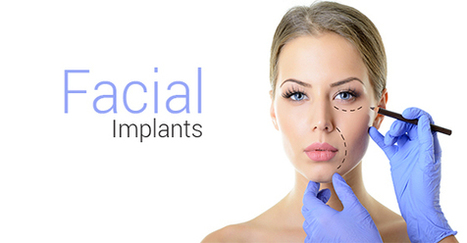 Where Can You Get Implants In Your Face? | Forest Hill | Law and legal services | Scoop.it