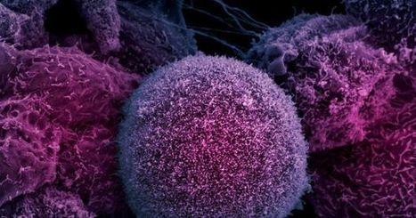 Scientists Discover a New Way to Switch 'Off' Cancer Cells - Futurism   Chair et Métal - L'Humanité augmentée   Scoop.it
