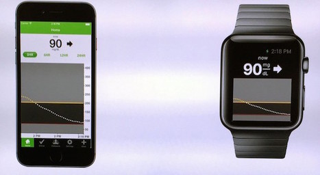Apple Watch App Made By Dexcom Will Display Blood Glucose Levels | BYOD in Business | Scoop.it