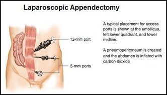 Appendix surgery in Ahmedabad | Laparoscopic surgery in Ahmedabad | Scoop.it