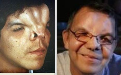 Man with Facial Deformities Says Faith in God Gave Him Hope During Excessive Abuse - Christian Blog | Biblical News | Scoop.it